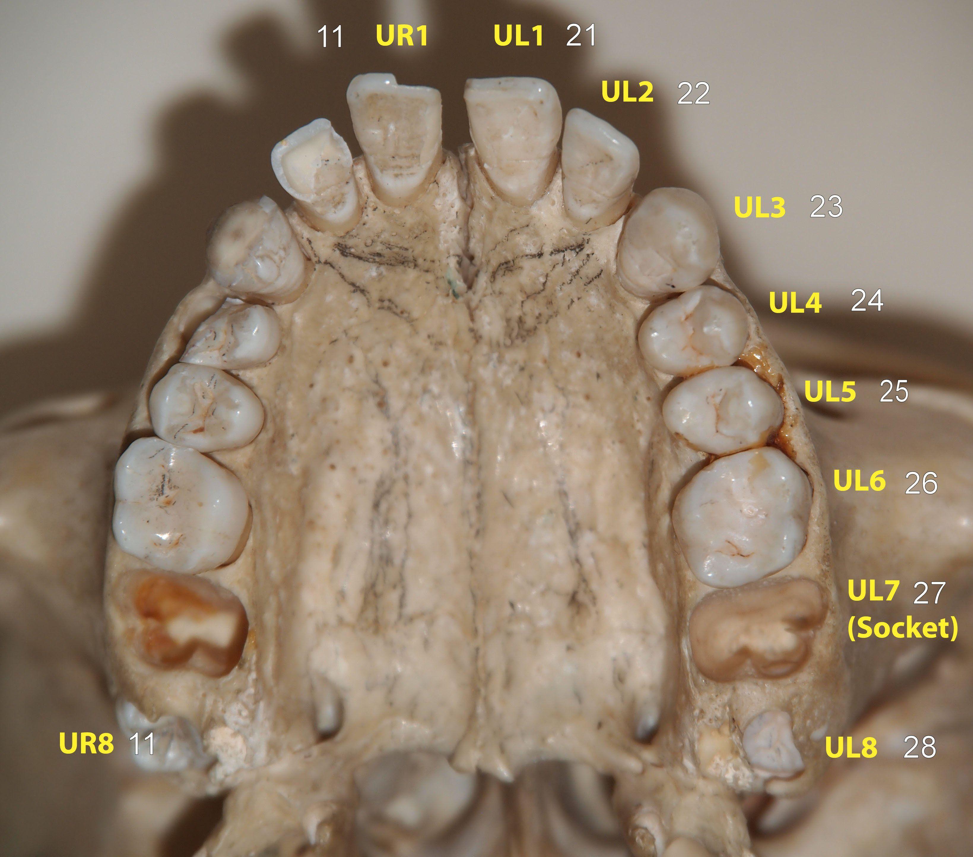 Dental Age Estimation » Anatomy – Permanent Dentition