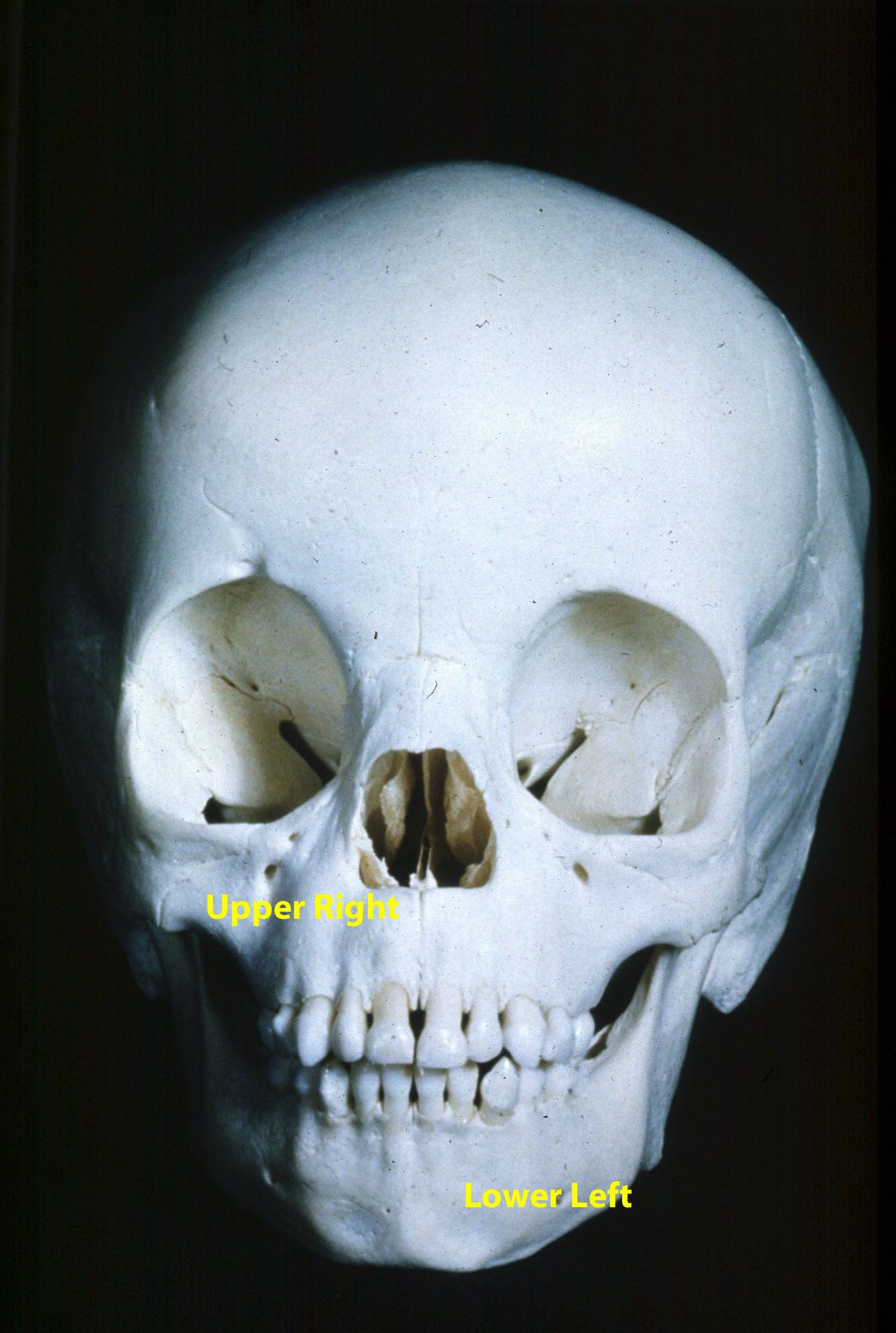 Dental Age Estimation » Anatomy – Primary Dentition